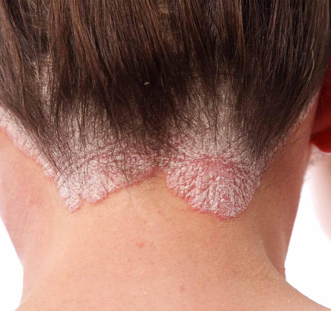Psoriasis – Overview, Types and Treatment