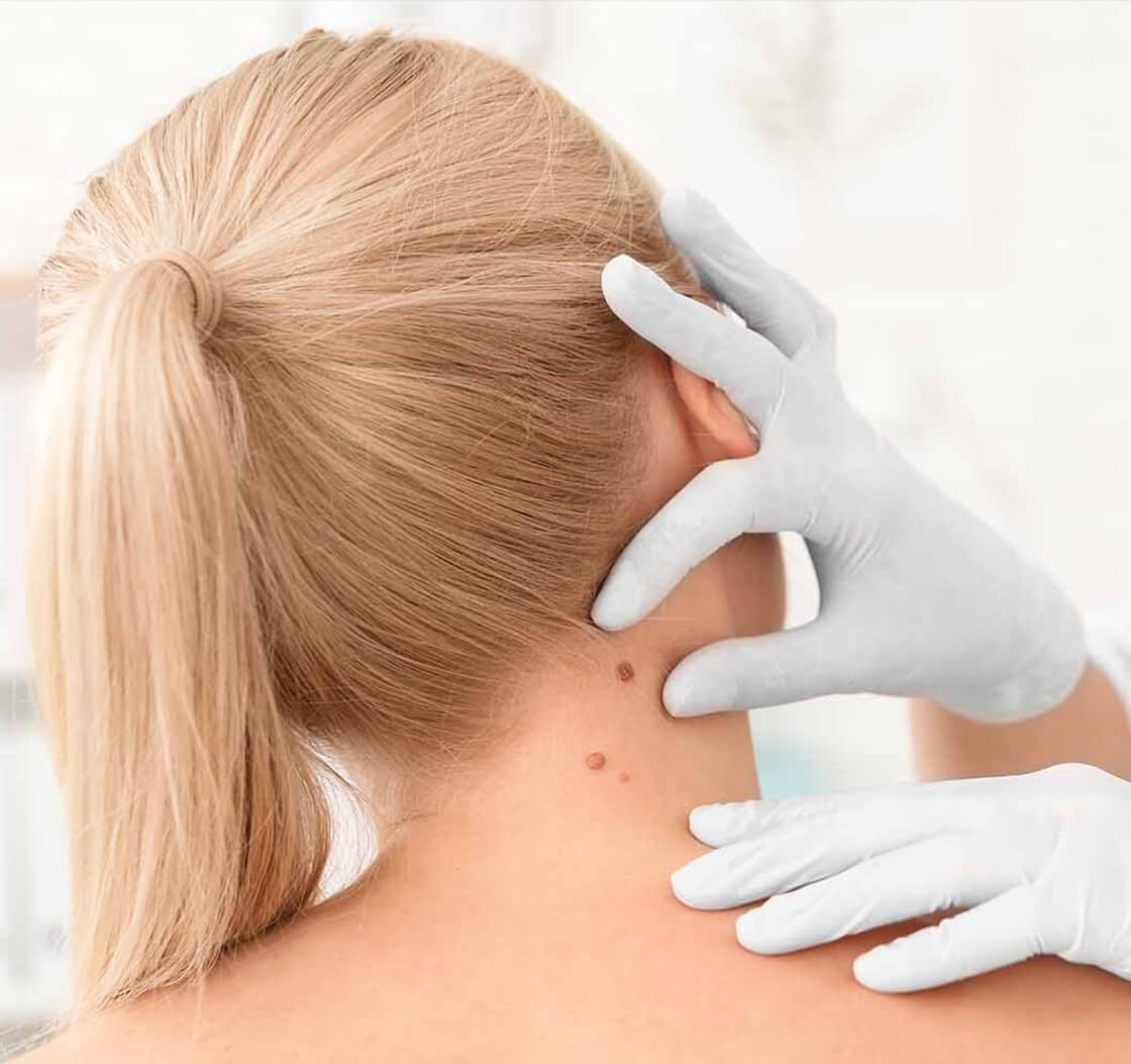 Know More About Skin Cancer