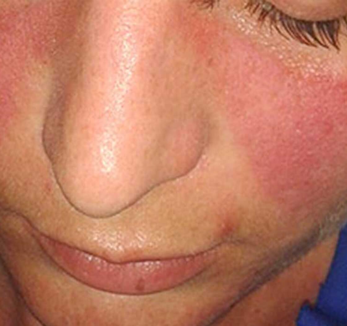 Common Skin Irritants