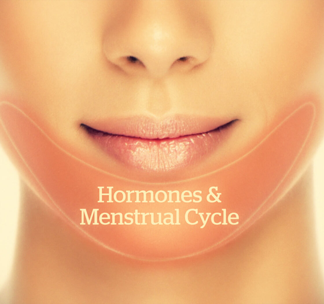 Do Pimples Near the Menstrual Cycle Indicate a Hormonal Imbalance?