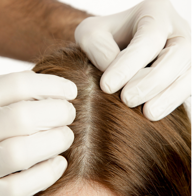 Scalp Health: The Dos and Don'ts