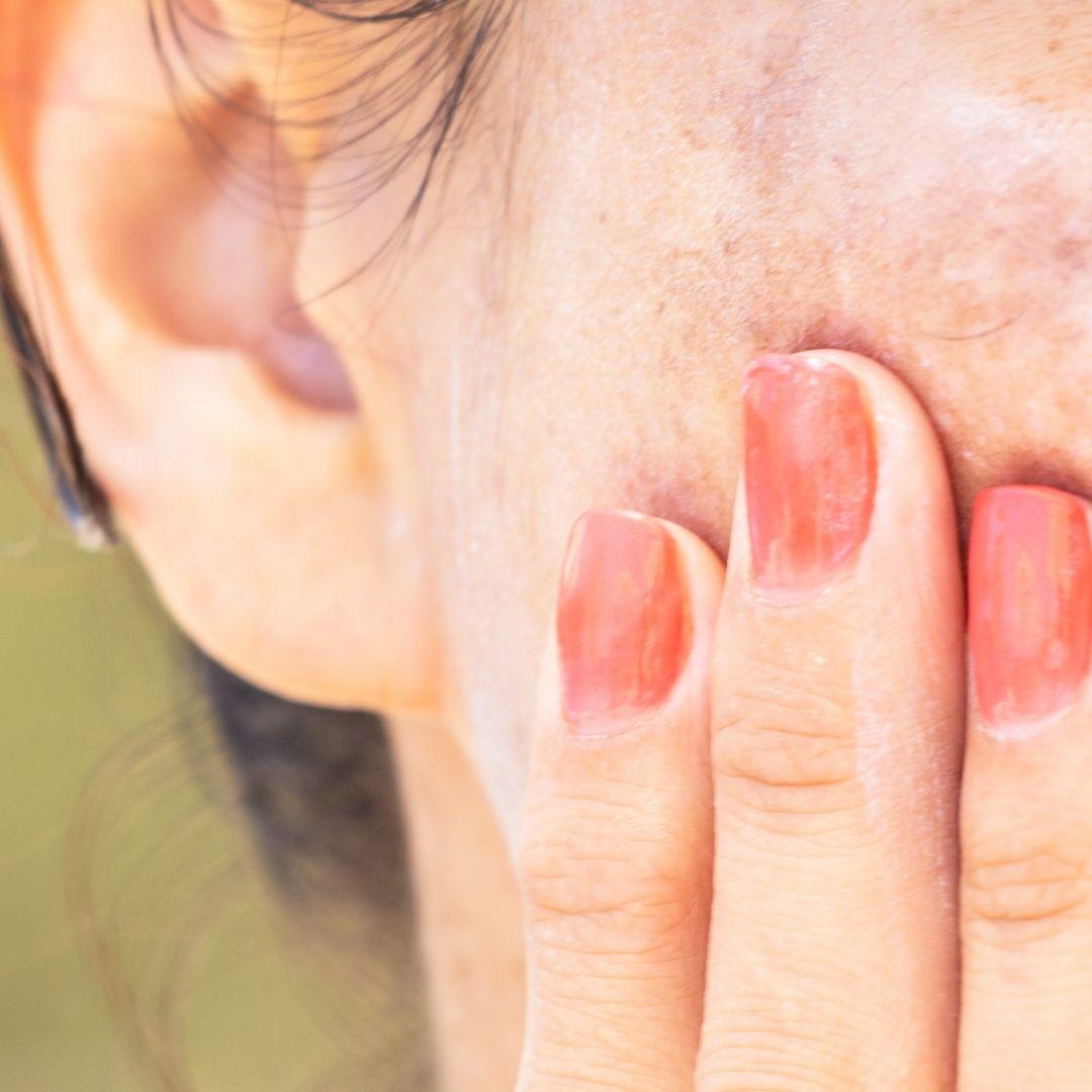 Best treatments of pigmentation