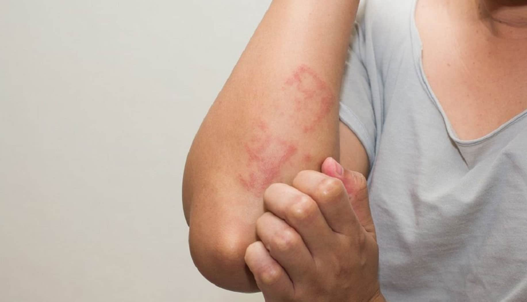 Eczema Treatment in Bangalore