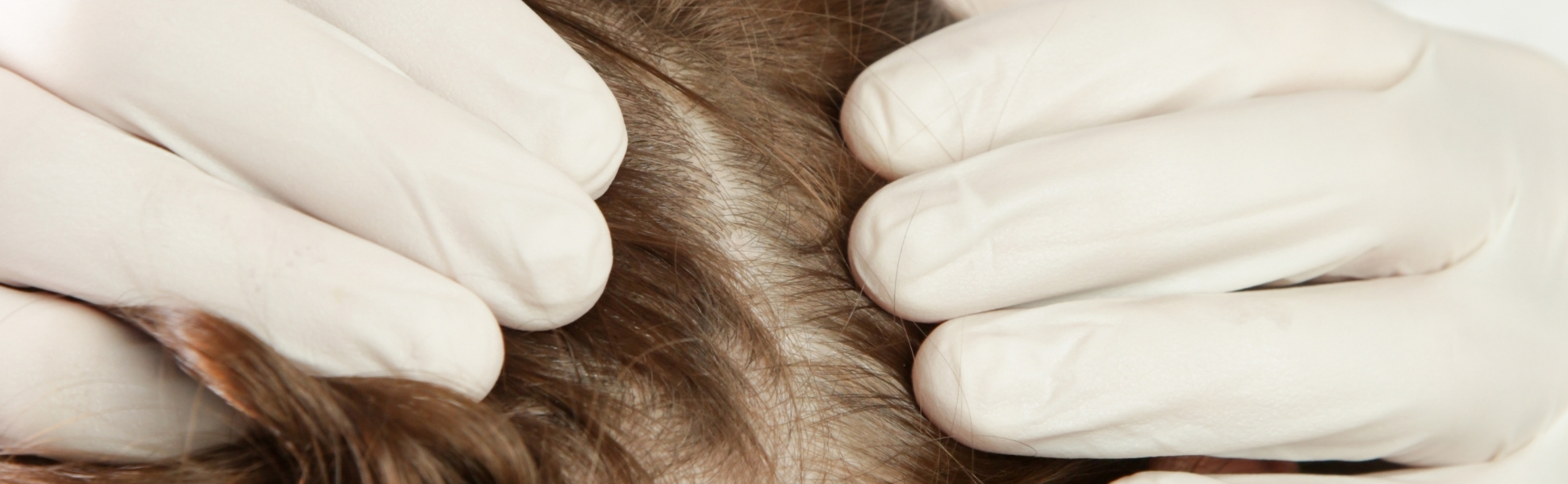 Scalp Infection treatment in Bangalore