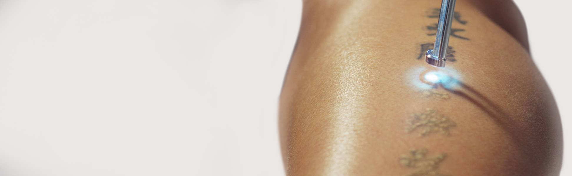 Tattoo Removal Treatment in Bangalore