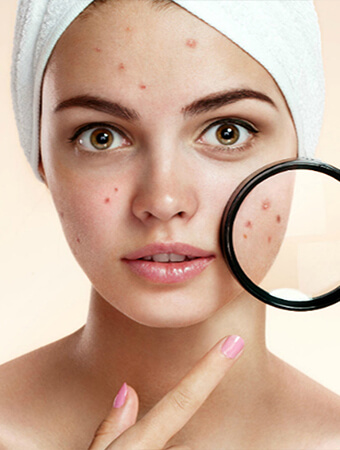 Acne Treatment in Bangalore