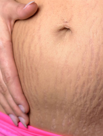 Stretch Marks Treatment in Bangalore
