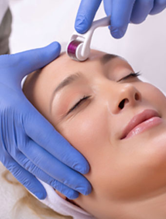 Radio frequency micro needling