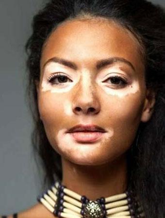 Vitiligo Treatment in Bangalore
