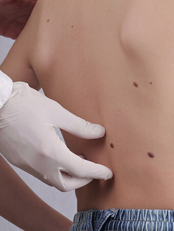 Skin Tags on body