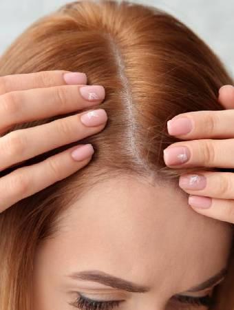 Hair Fall in Female