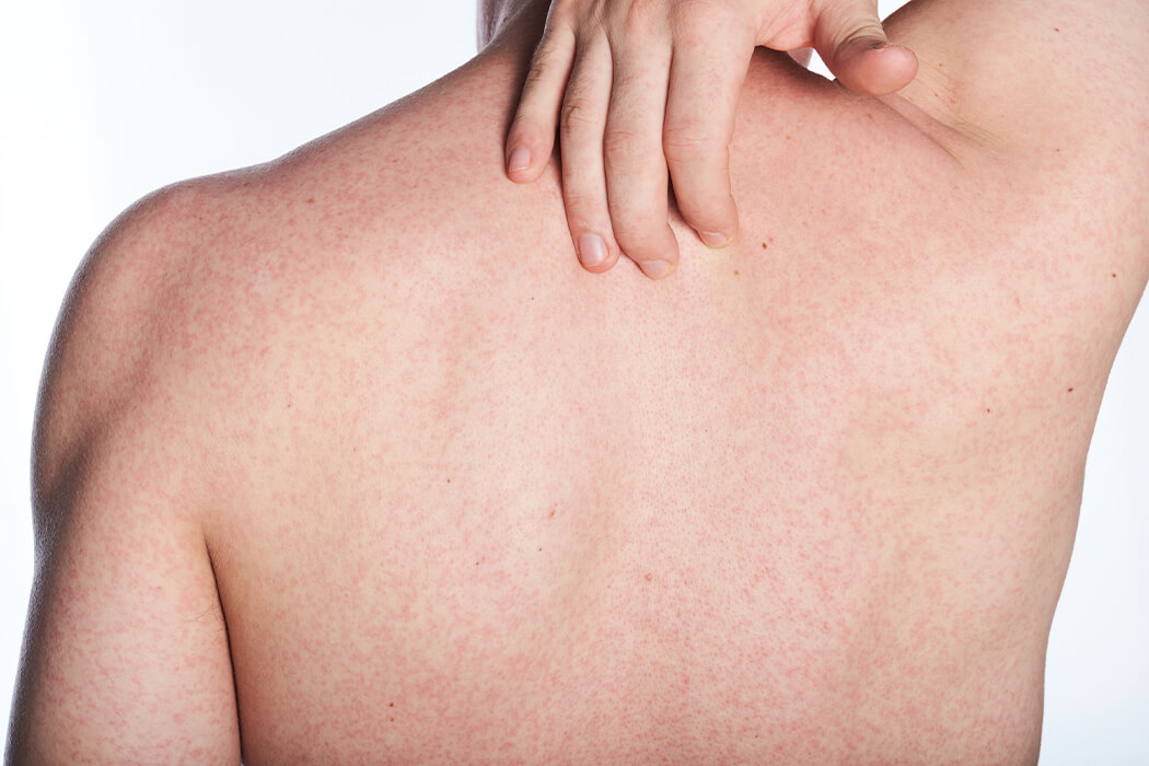 skin allergy doctor in bangalore
