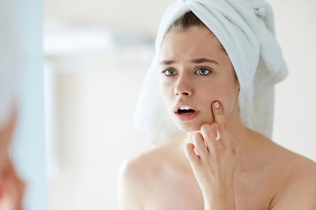 Acne & Pimples Treatment in Bangalore