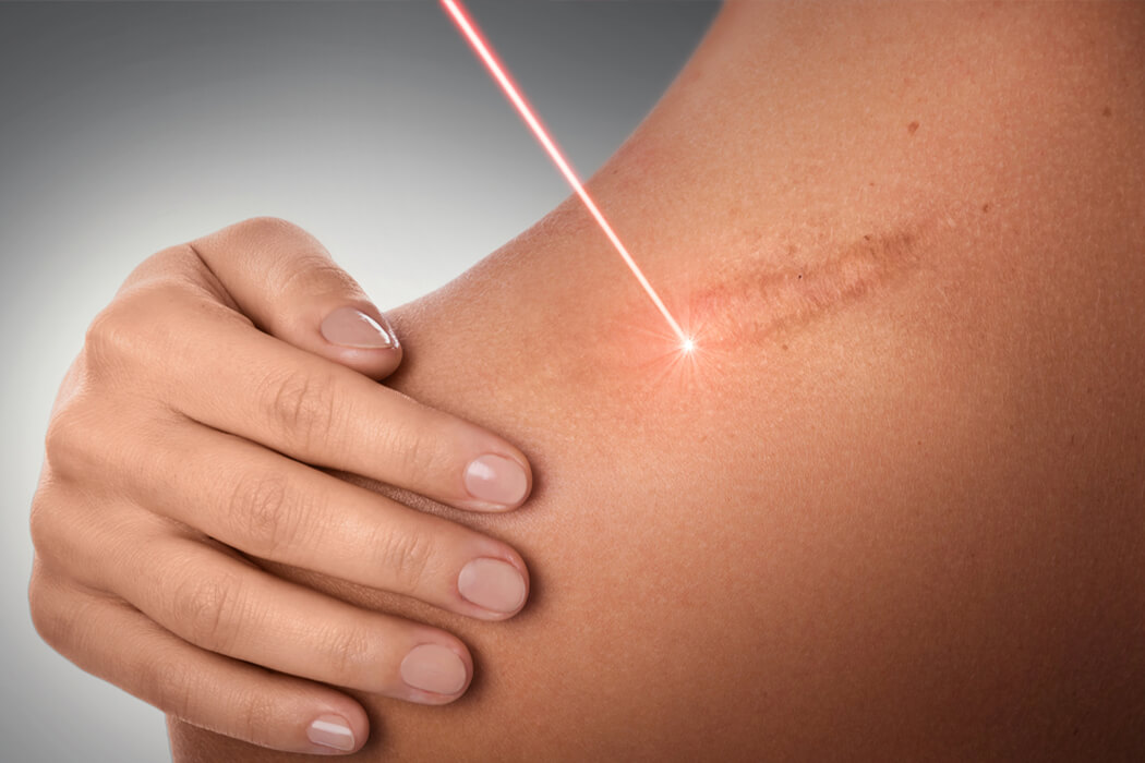Scar Removal in Bangalore
