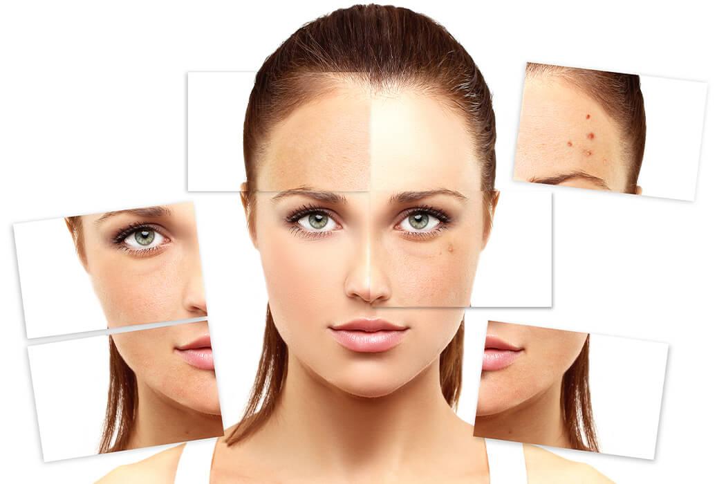 Skin Resurfacing & Texture in Bangalore