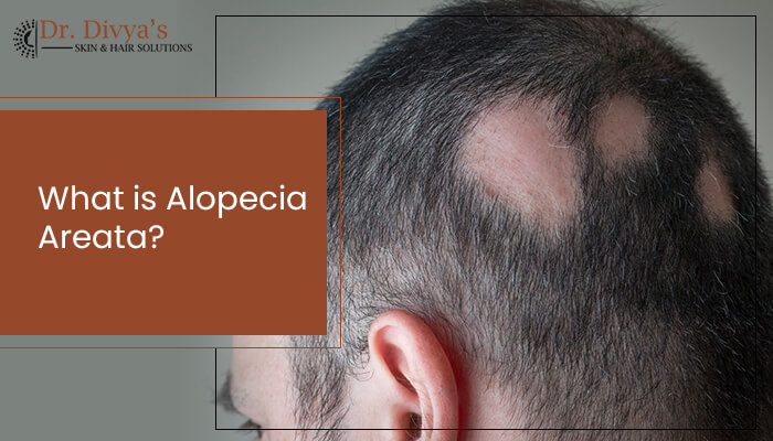 what is Alopecia Areata