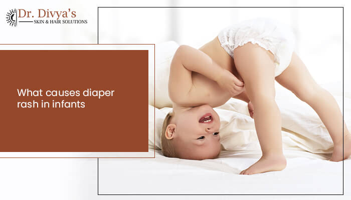 what causes diaper rash in infants