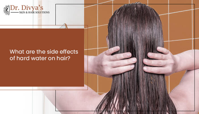 Side effects of using hard water on hair