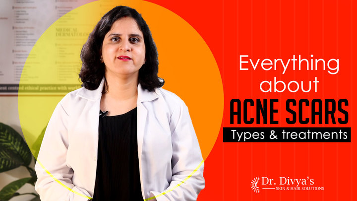 Everything about Acne Scars - Types & treatments