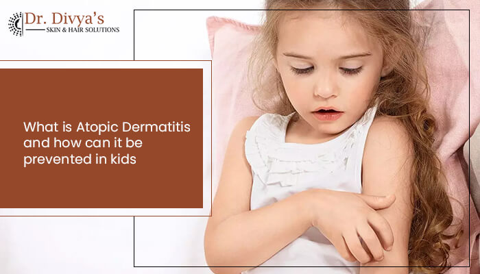 Atopic dermatitis treatment child