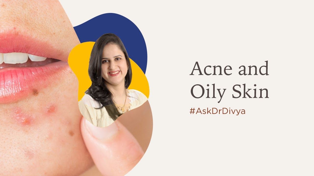 Acne and oily skin