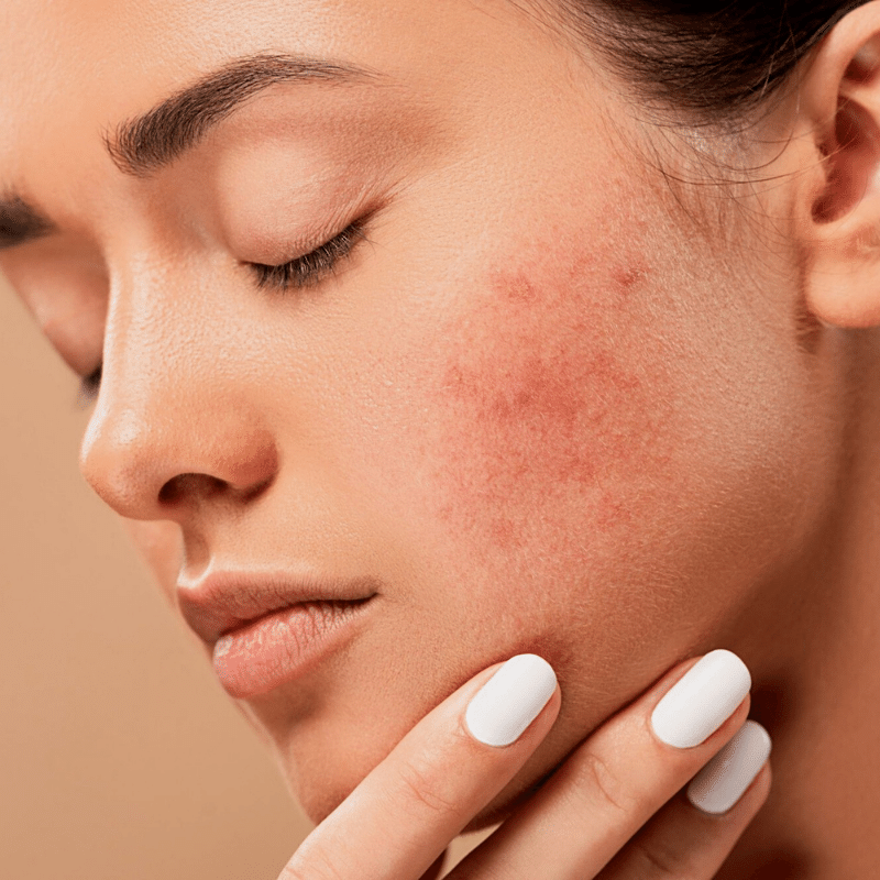 What are some of the basic skincare tips to prevent acne & pimples?