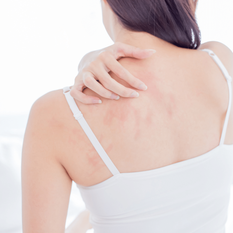 What are the different types of Eczema and how to treat them?